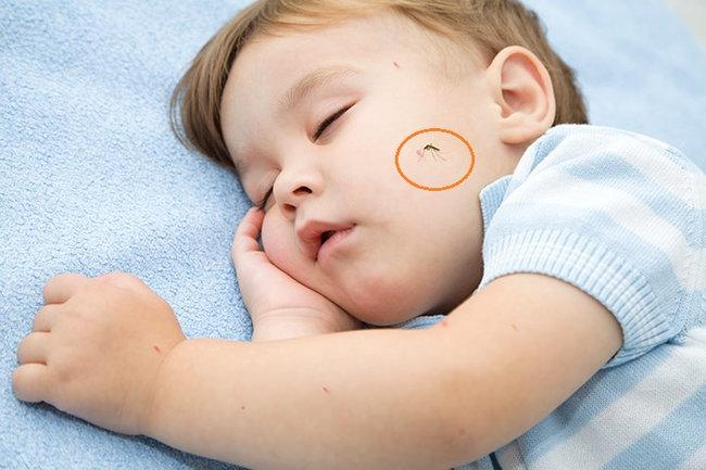 Những biểu hiện nào sau tiêm chủng là bất thường, cần đưa trẻ đến cơ sở y tế?
