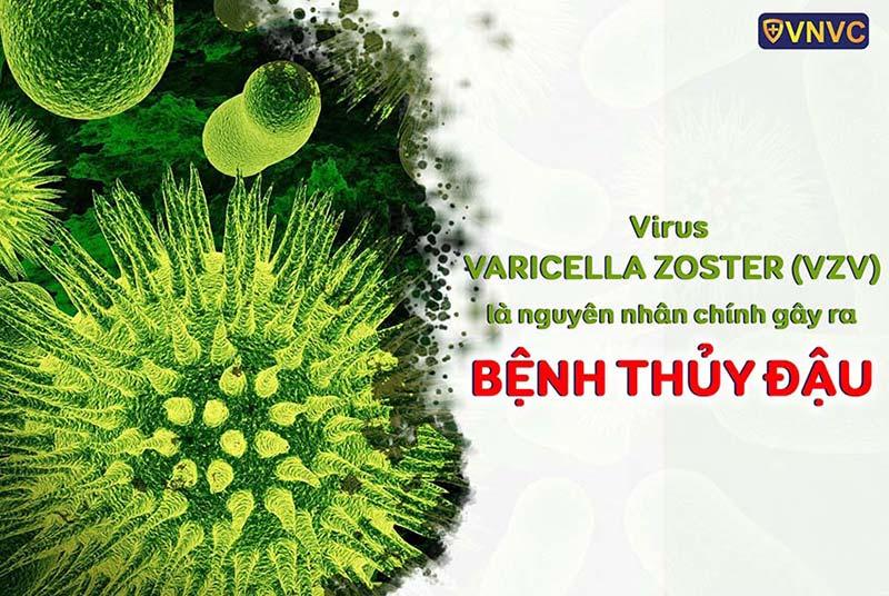 Nên tiêm vắc xin ngừa thủy đậu nào: Varivax (Mỹ) hay loại của Bỉ?