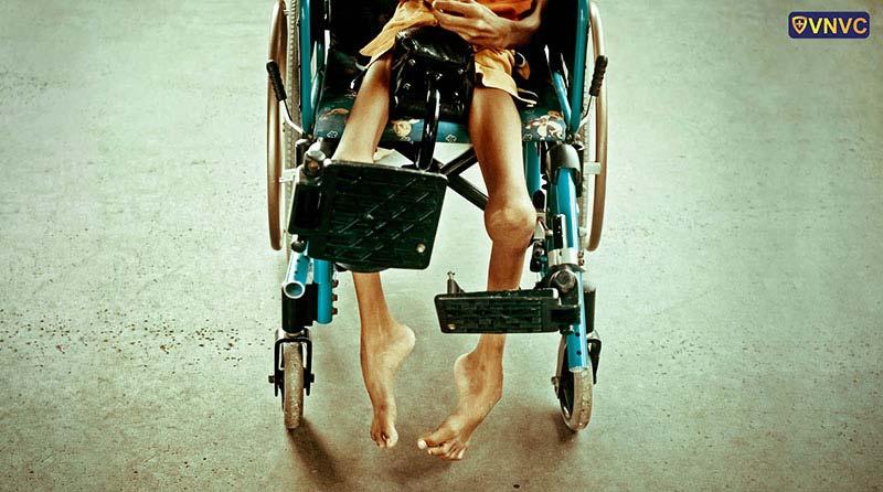 Người mắc bệnh bại liệt có thể teo cơ, suy dinh dưỡng, thậm chí bị tử vong