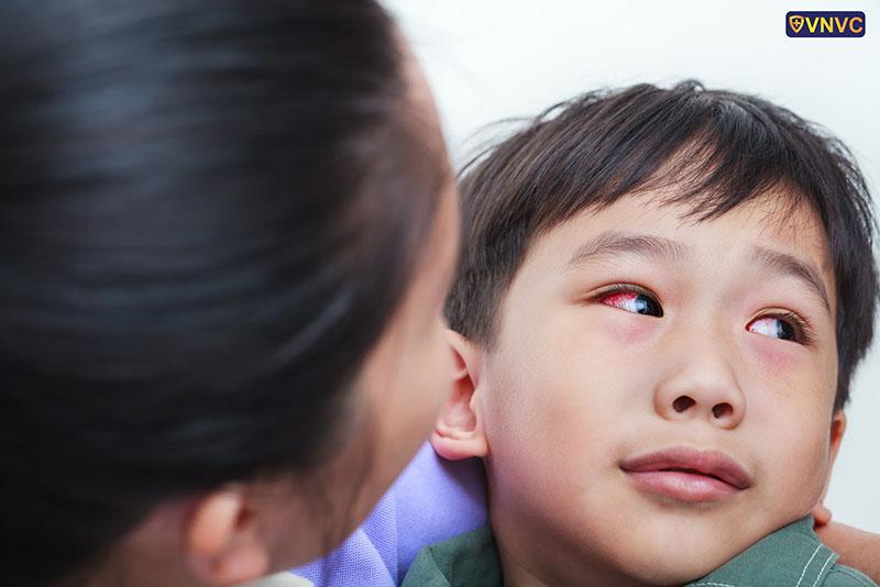 Đau mắt hột: nguyên nhân, triệu chứng, điều trị và cách phòng ngừa