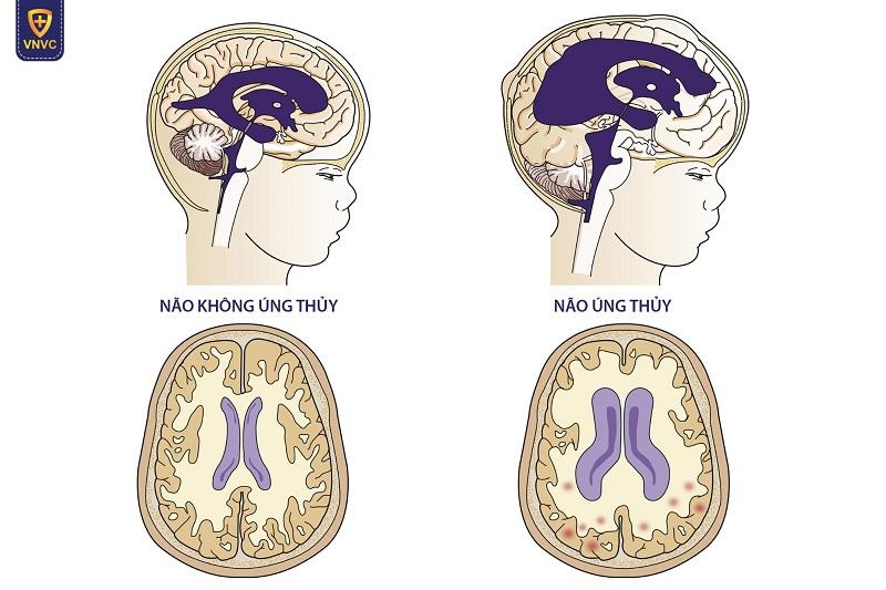 Não úng thủy: Nguyên nhân, triệu chứng, biến chứng và cách phòng ngừa – Công ty Cổ phần Vacxin Việt Nam